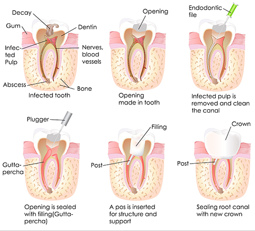 Root Canal in Huntington